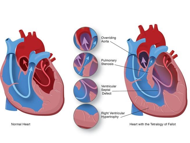 tof-heart
